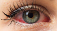 image of red eye