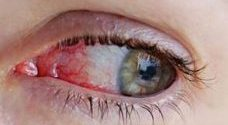 image of bloodshot eye