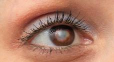 Image of eye with cataract