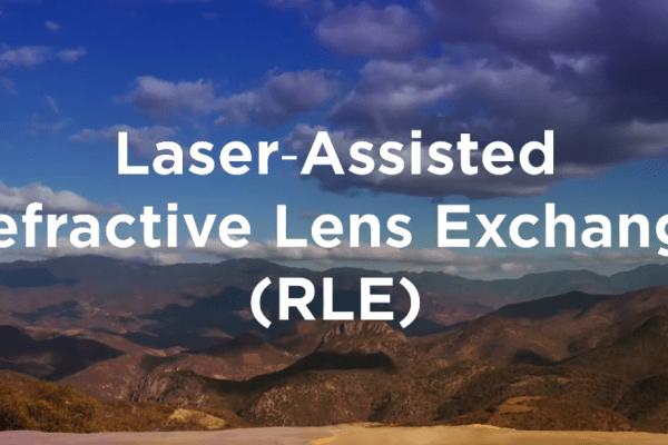 Laser Assisted RLE