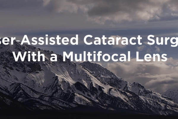 Laser Assisted Multifocal